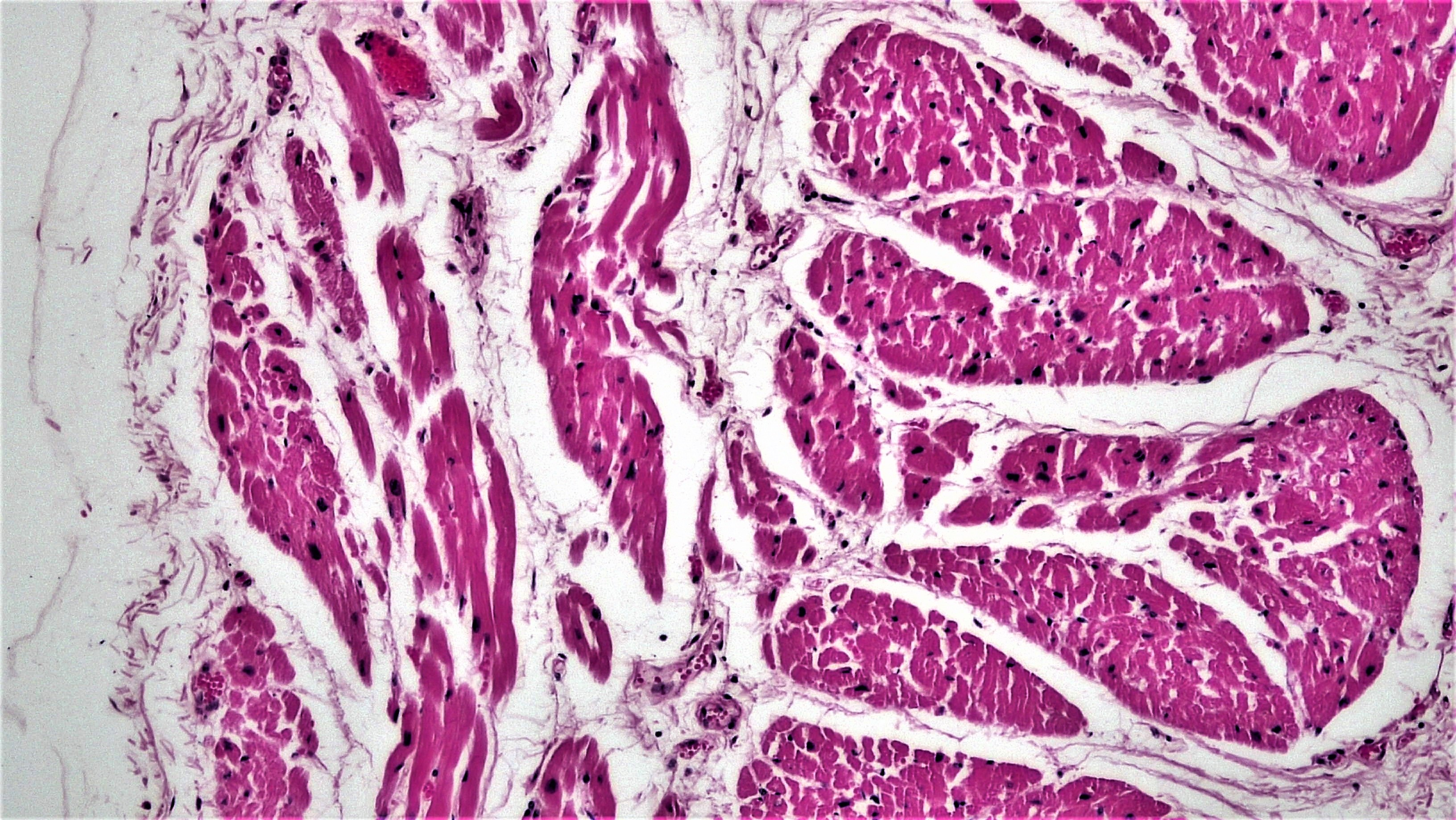 Muscles and nervous tissues